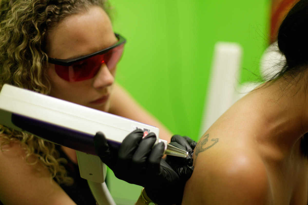 dragon-tattoo_fade-laser_ellen_02.jpg